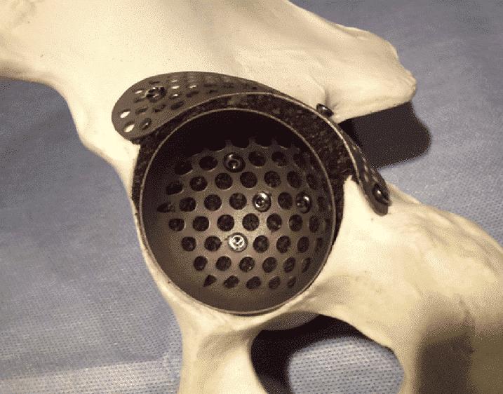 case-bone-grafting-system-img